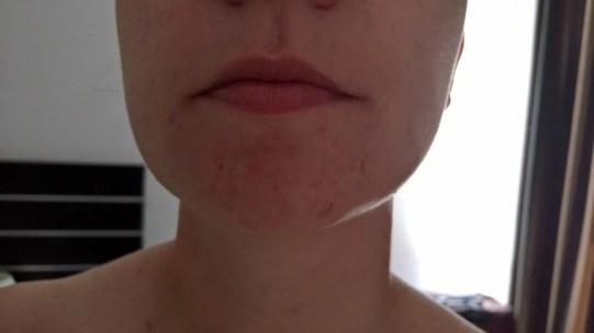 Einmal Ironman bitte [Anti Akne Maske von Neutrogena (3,5 von 5)] im Produkttest