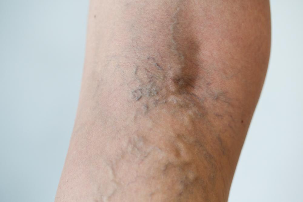varicose veins on leg