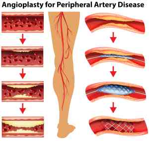 angioplasty for PAD