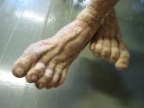 blote voeten, ach wat zielig!