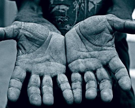 Руки - важный инструмент