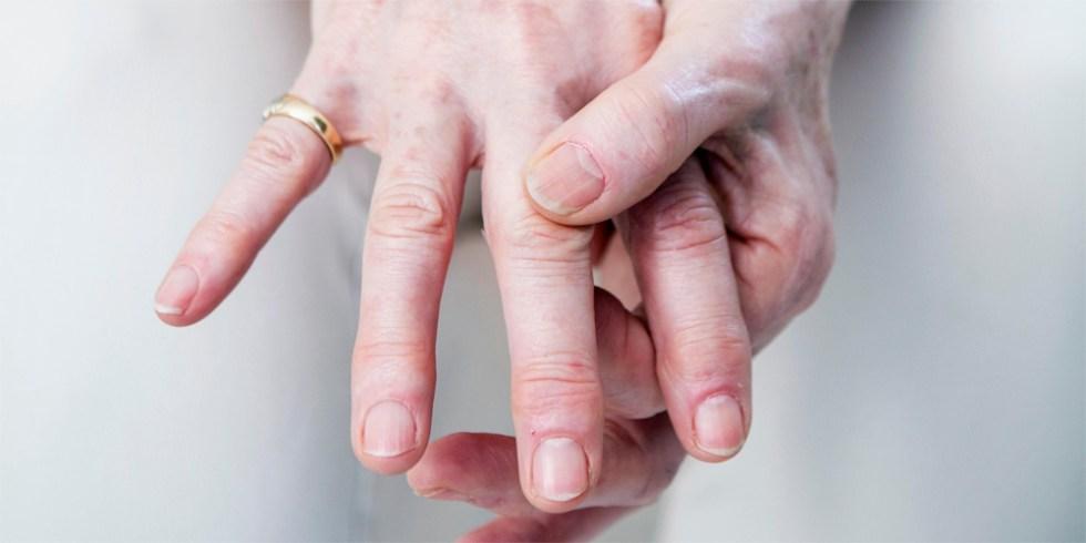 Полиартрит рук лечение