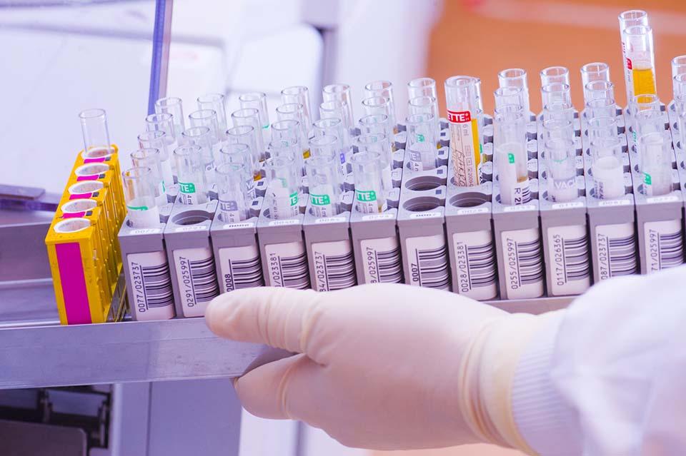 Пробирки для биохимического анализа