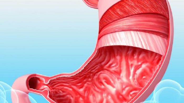 Причины возникновения язв в желудке