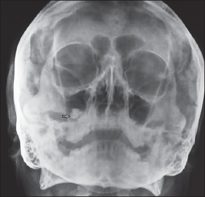 затемнение гайморовой пазухи на рентгене