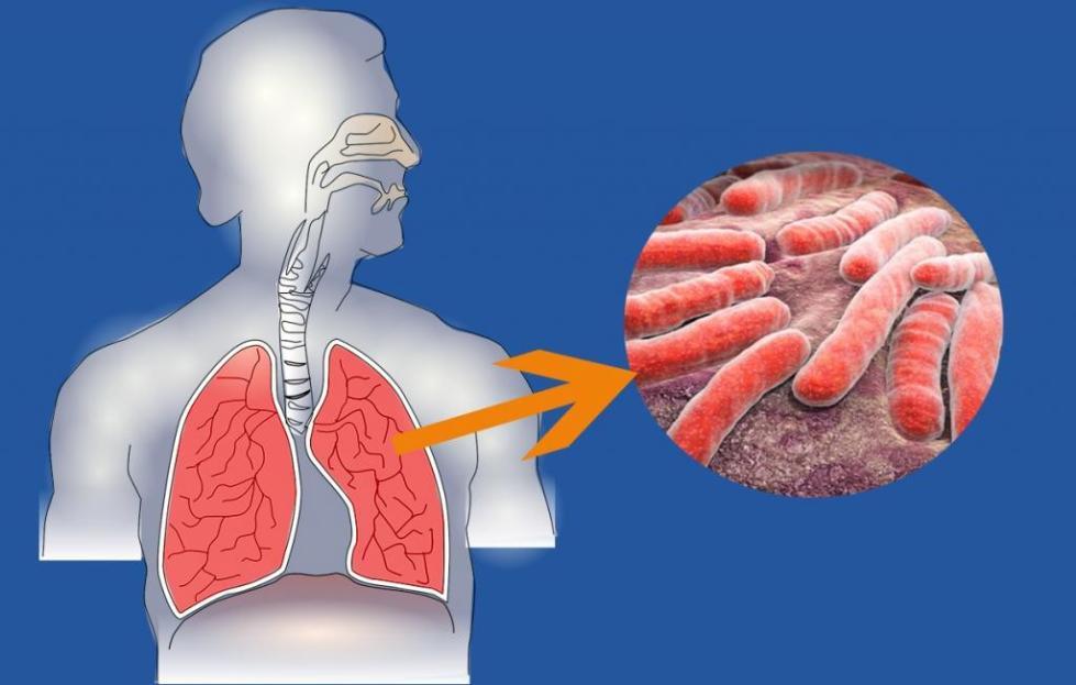 туберкулезная волчанка лица и рук