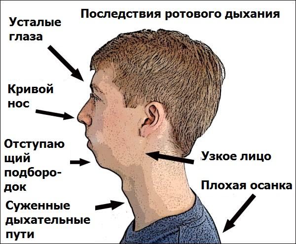 Последствия ротового дыхания