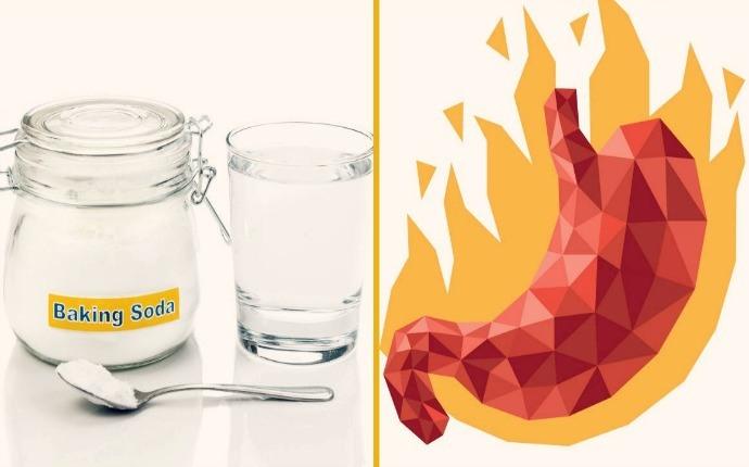 сода при изжоге