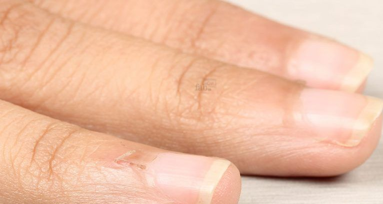 почему заусенцы появляются на пальцах