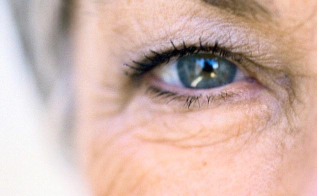 псевдоэксфолиативный синдром обоих глаз