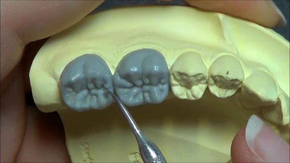 художественное моделирование зубов