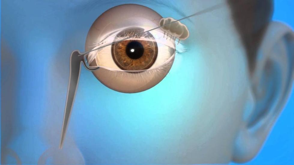 Операция по зондированию слезного канала