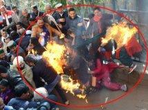 मोदी का पुतलाफूंकने में खुद जले कांग्रेसी कार्यकर्ता