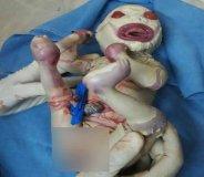 नागपुर में जन्मी 'हार्लेक्विन बेबी',48 घंटे रही जिंदा