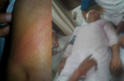 हवाला कांड: NSUI का प्रदर्शन, पुलिस ने पीटा, अरुण यादव घायल