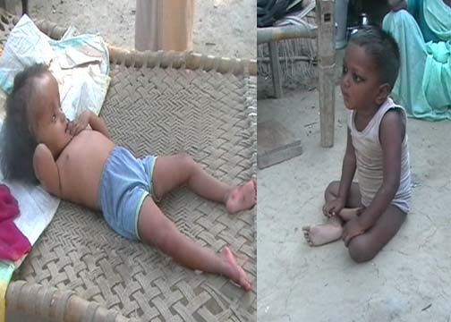 UP Amethi among worst performers in kids malnutrition