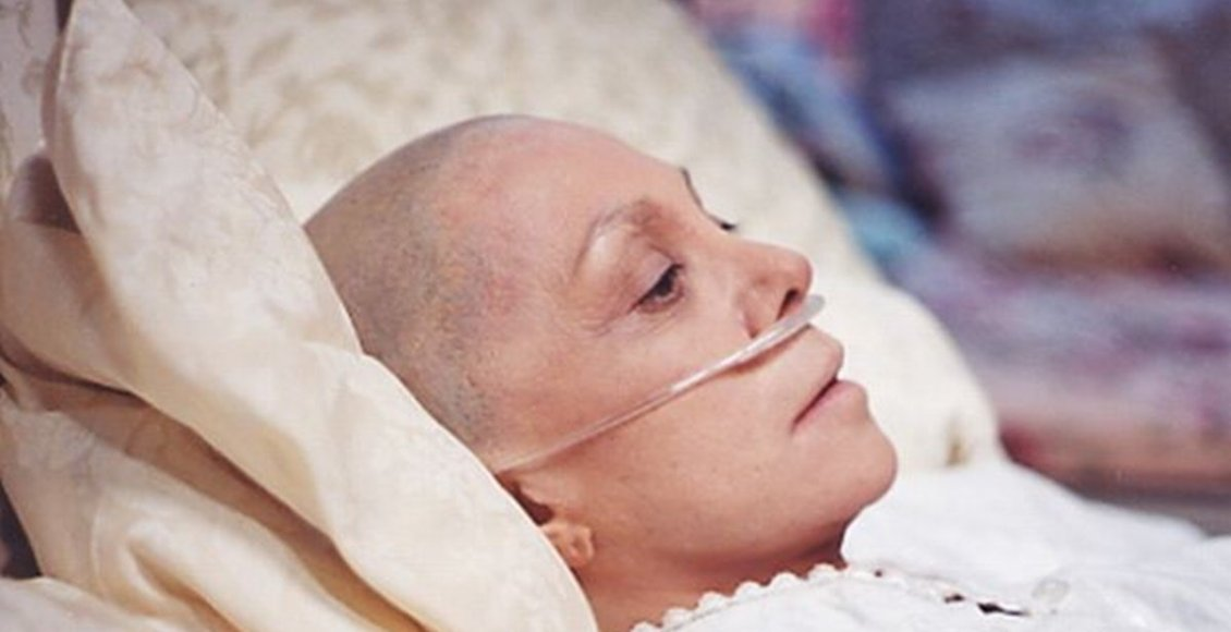 Why-does-hair-fall-from-the-body-during-cancer-treatment-this-is-the-reason