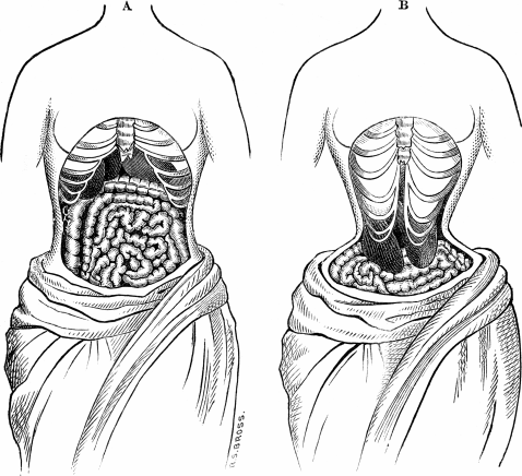 The possible impact of Waist Trainers like Miss Belt or Genie Hourglass that are 21st century corsets.