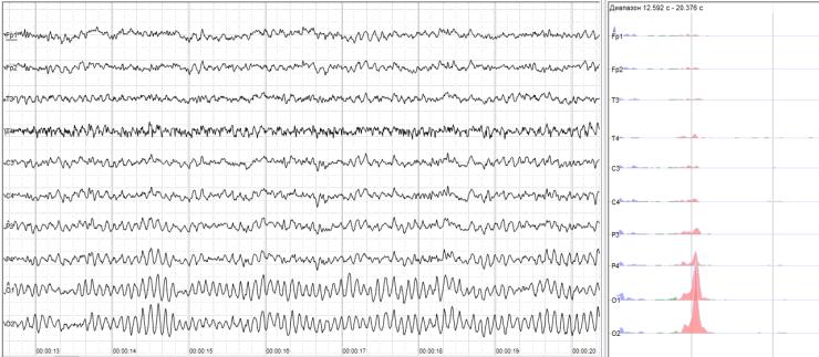 EEG for neural signature