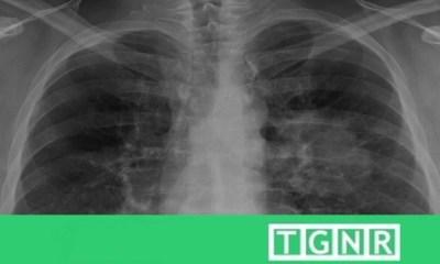 Self healing lungs