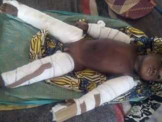 2 years Old Killed By Step Mom, both hands and legs Broken ( Photos )