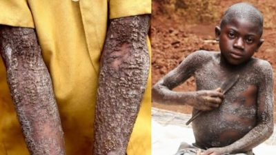 So Sad: Meet The 12-Year-Old Boy Turning Into A Stone, Yet No Cure For Him (See Photos)