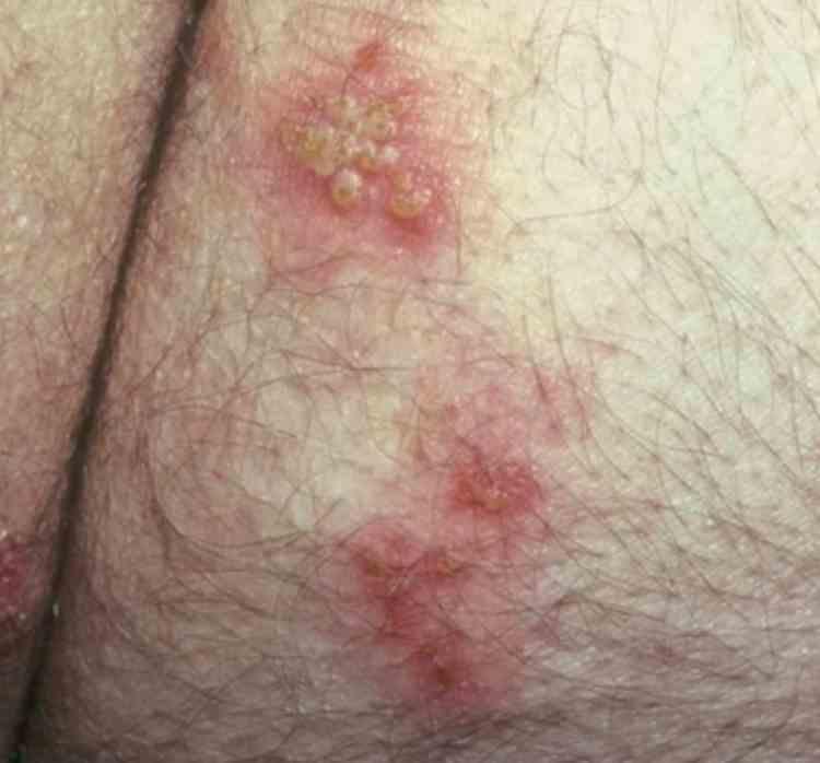 Skin HSV
