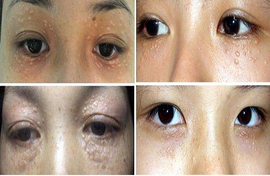 Cách điều trị mụn thịt quanh mắt hiệu quả
