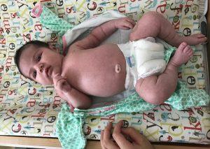 Managing Sensitive Baby Skin
