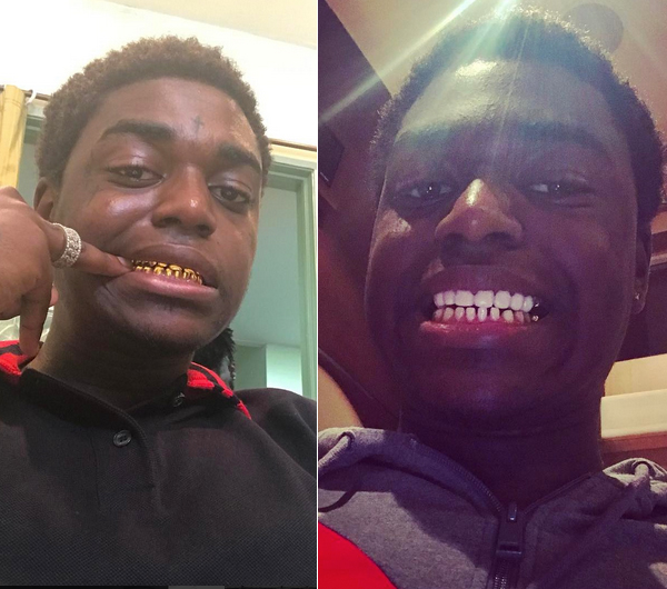 Kodak Black Removes His Permanent Gold Teeth For Good