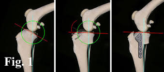 tibial plateau angle in dogs, tplo surgery for dogs