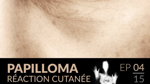 Papilloma // 04 : Réaction cutanée.