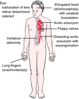 Common features of Marfan syndrome Image credit: http://medical-dictionary.thefreedictionary.com/Marfan+syndrome