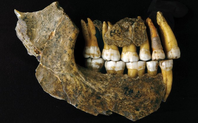below The maxilla and mandible of a Neanderthal from Spy Cave.