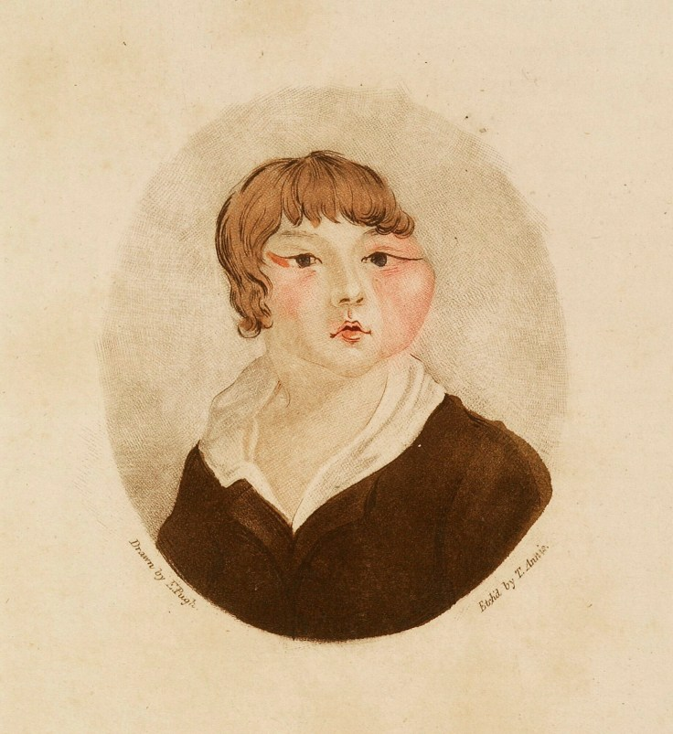 early vaccination image ox-faced boy