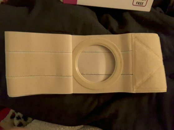 ileostomy-belt-2
