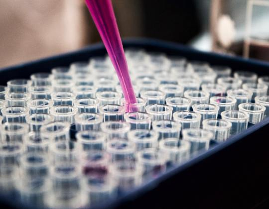 Hull Coronavirus Researcher Develops COVID-19 Test That Takes Five Minutes