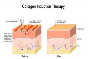 Collagen introduction treatment- Therapy