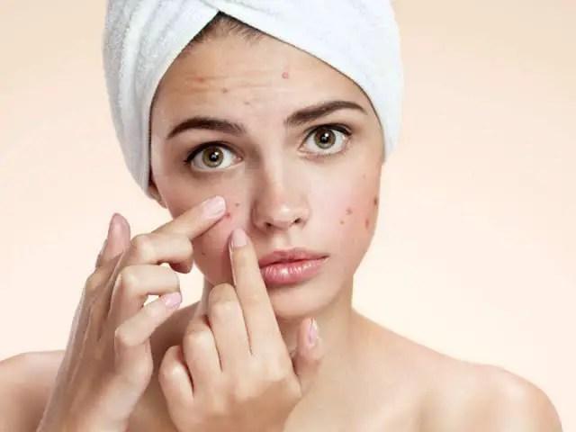 Women hiding pimples with makeup