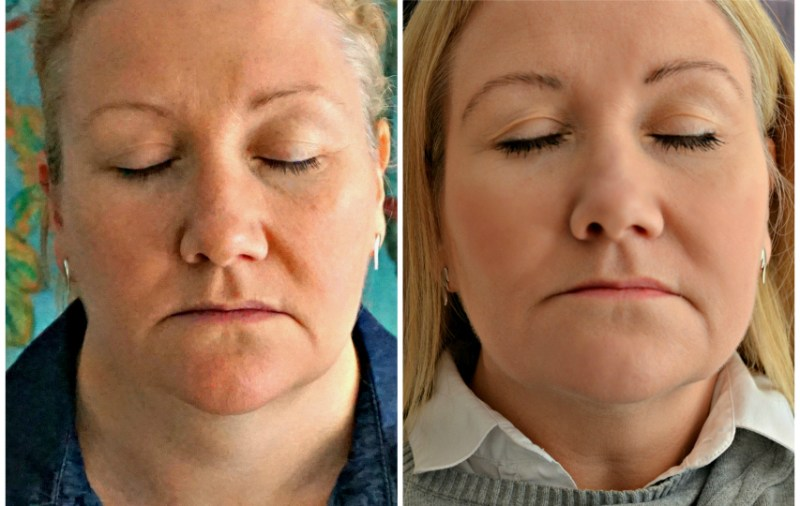 My experience of RF Skin Tightening - everything you need to