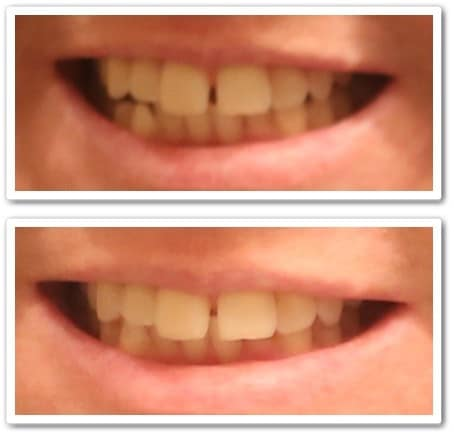 Smile Brilliant LED Teeth Whitening