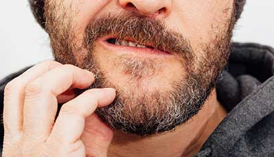 How to Stop Your Beard Itch: Say Goodbye to Beard Itch