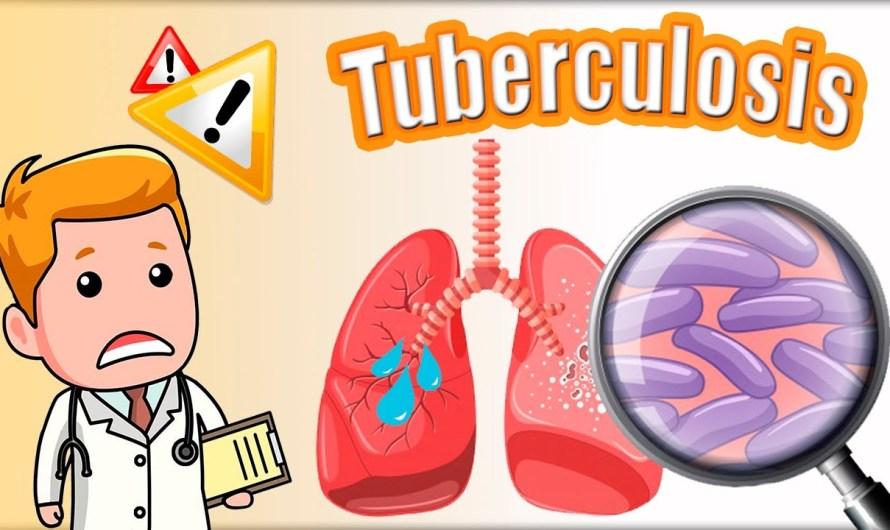 Implementará Baja California proyecto Tuberculosis Latente para prevenir la enfermedad que afecta al Estado y al país