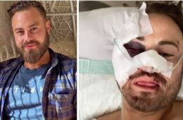 Australian Man's $35,000 Bali Hospital Bill Not Covered By Insurance Because Scooter Engine Was Too Big