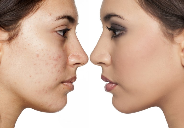 Blemishes Signs Causes how to get rid