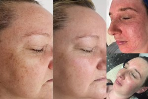 Mini Pigmentation Redness Before After - Pigmentation-Redness-Before-After