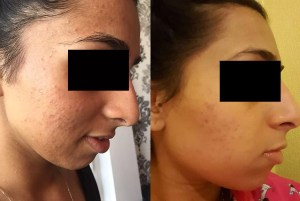 Mini Spot Prone Before After - Spot Prone Before-After