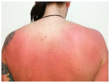 Sunburned back after 1 ½ hours in the sun