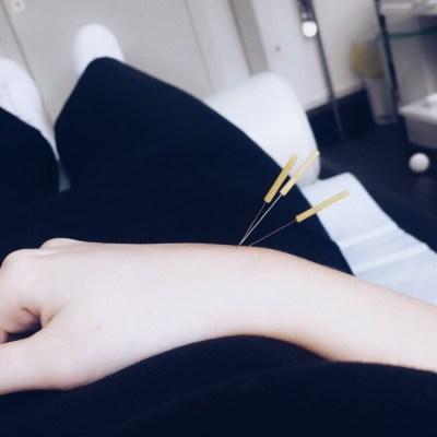 Akupunktur an der Hand Überbein