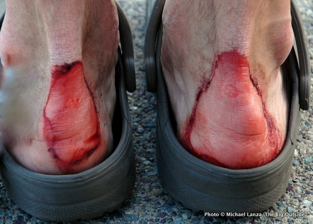 Image result for hiking blisters